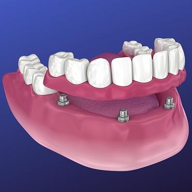 Overdenture | Snap-In Dentures | Dental Implant Dentures