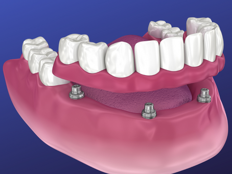 Overdenture | Snap-In Dentures | Dental Implant Dentures
