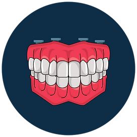 Overdenture / Snap-In Dentures