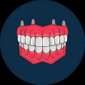 Full Mouth Dental Implant