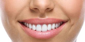 Carillas Dentales, Guatemala, Dentistas, Luis Grisolia