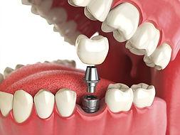 Implantes dentales guatemala