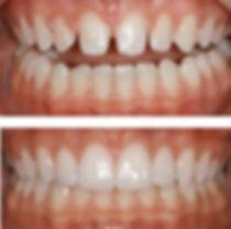 Carillas Dentales, Diseño de Sonrisa