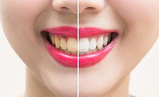 Odontologia Cosmetica Dr. Luis Grisolia