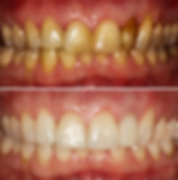 Dentistas Guatemala, Dentist Guatemala, Dental Veeners, Carillas Dentales, Luis Grisolia Dentista