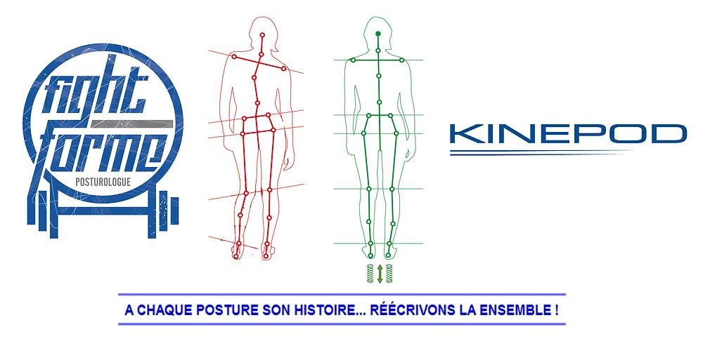 Posture et déséquilibres