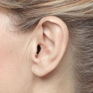 apparecchi-acustici-intrauricolari.jpg