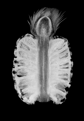 Neoscan solutions MRI fruits images