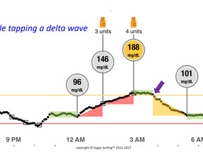 "SUGAR SURFING LESSON #4: WHEN TO ""DOUBLE TAP"" A DELTA WAVE"