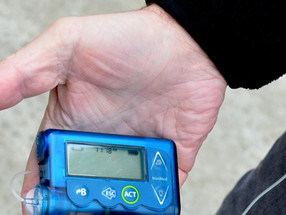 Use it or lose it: the hidden cost of diabetes technologies