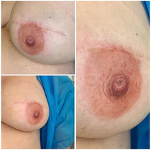 This is a Mastectomy Nipple Tattoo on co