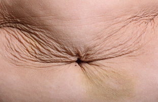 Deformed woman's belly with waist stretc