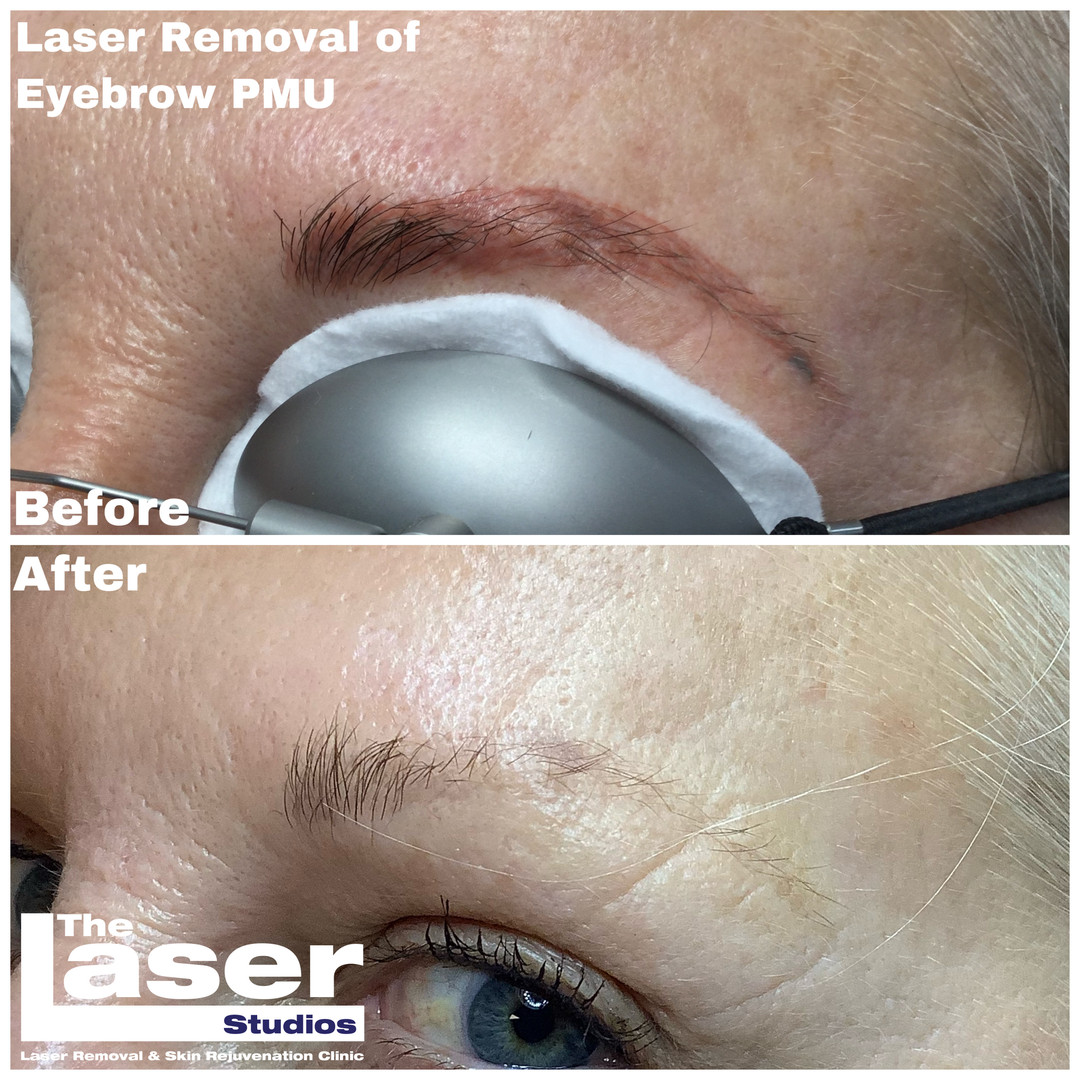 Permanent Makeup Brow Laser Removal