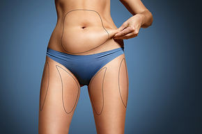 Woman Pinched Her Fat On Body. Body With Marked Zones For Liposuction.jpg