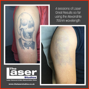We remove tattoos of all sizes, colours and locations on the body