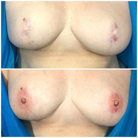 Nipple Tattoo on nipple reconstruction