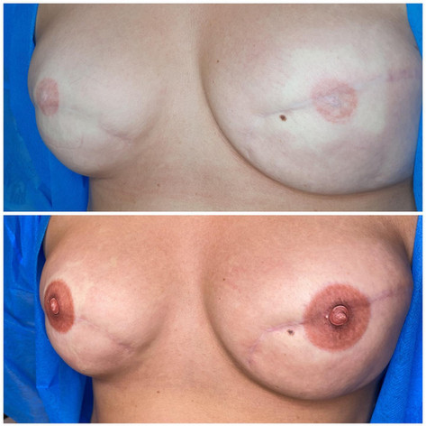 Cover up and reword 3D Areola Tattoo