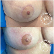Nipple Pigmentation