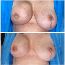 3D Areola Unilateral Mastectomy