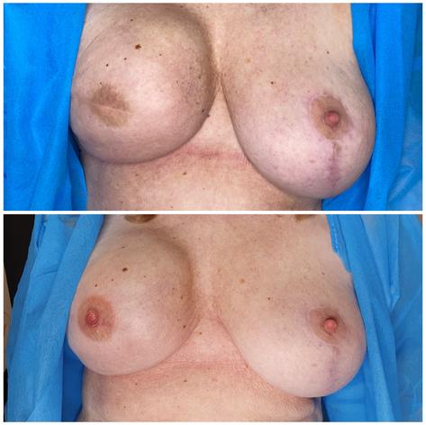3D Areola Unilateral Mastectomy