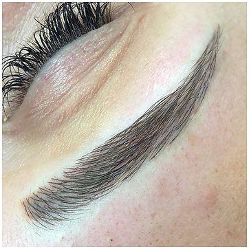 Hair Loss Regrowth Treatment