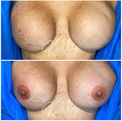 3D Areola Tattoo on flat skin