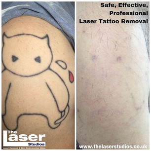 Want to Remove a Tattoo__Come and see us