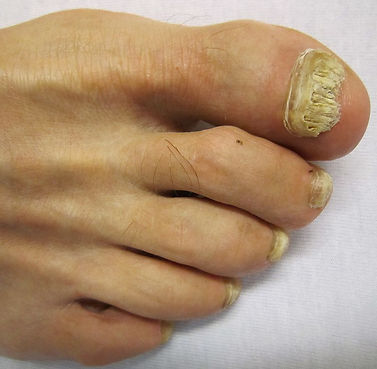 Fungal Nail Infection on Big Toe