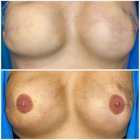 New nipples for this lady following breast cancer and mastectomy