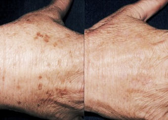 Pigmentation Removal by IPL and Laser