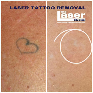 Tattoo Removed in just 5 sessions! Book