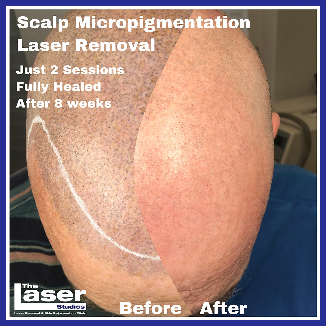 Scalp Micropigmentation SMP Laser Removal in just 2 sessions
