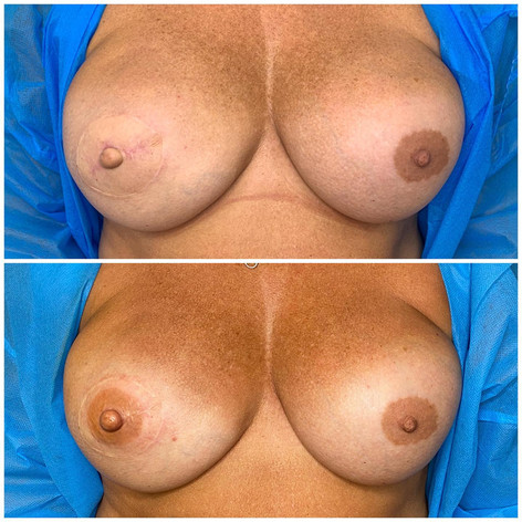 Areola Tattoo on nipple reconstruction