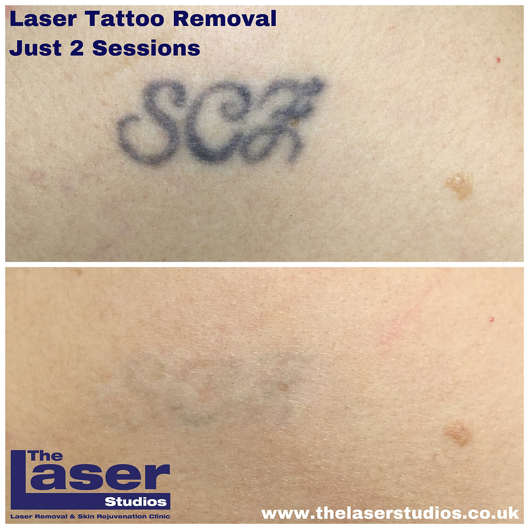 Super fast Tattoo Removal