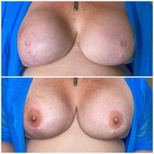 Double 3D Areola Tattoo on bilateral mastectomy