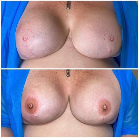 Double 3D Areola Tattoo on bilateral mastectomy