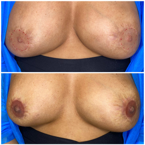 Nipple Enhancement following breast surgery