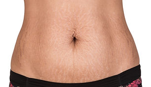 Woman Showing Stretch Marks..jpg