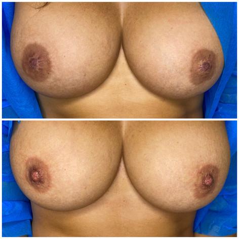 Nipple Enhancement