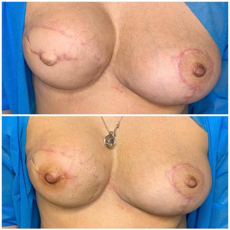 Nipple Tattoo on nipple reconstruction plus scar camo and CIT on scar