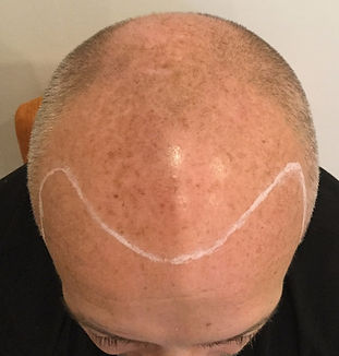 Scalp Micropigmentation bald man hairline restoration london hertfordshire essex bedfordshire