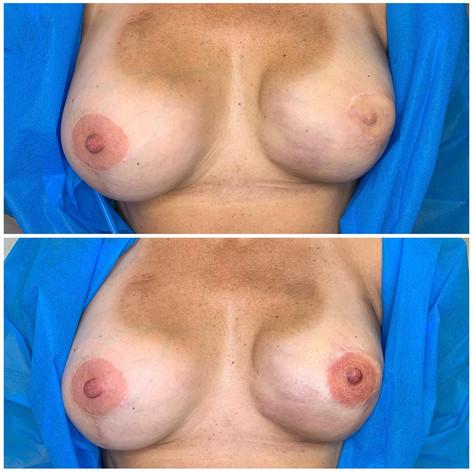 Single Side Nipple Tattoo
