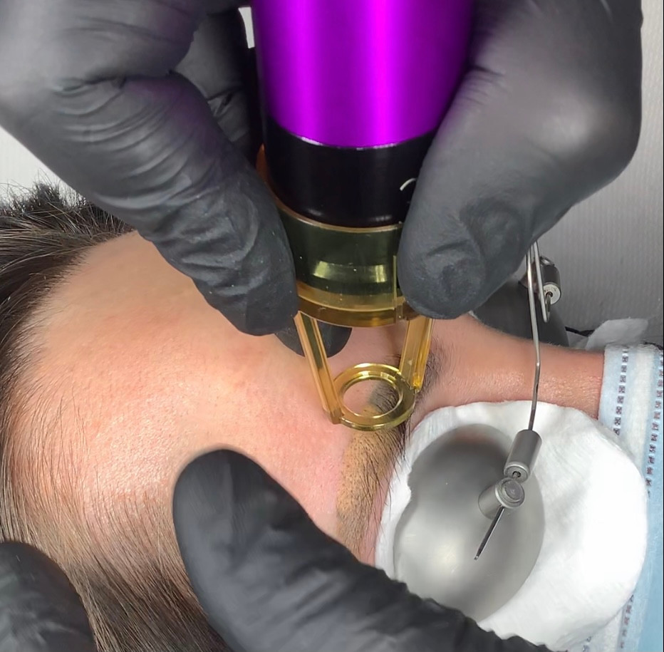 SPMU Semi Permanent Makeup Removal by Laser