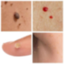 Examples of Skin Tags, Cherry Angioma, Wart