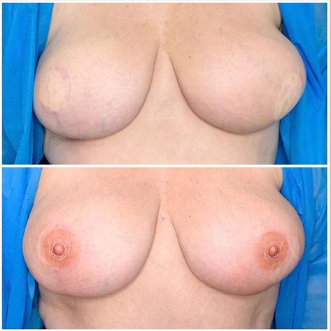 3 D Nipple on flat skin diep flap