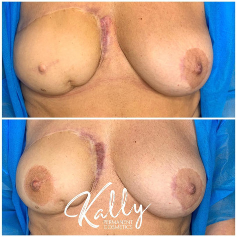 3D Nipple Tattoo Breast Cancer