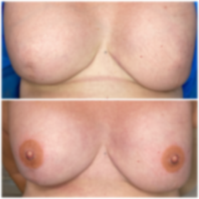 Bilateral 3D Areola Nipple Tattoo on flat skin