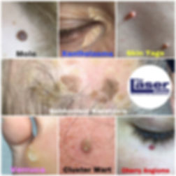 An Example of some of the Skin Blemishes and Growths we can remove at our skin clinic in Hitchin, Hertfordshire