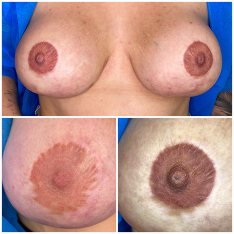 Nipple Enhancement and Reconstruction Tattoo
