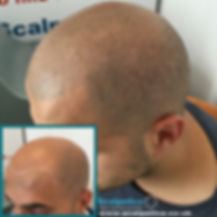 Scalp Micropigmentation Hair Tattoo Follicle Simulation Tricopigmentation Hair Transplant Hair Restoration Hair Recovery Treatment for Alopecia Areata, Alopecia Universalis, Alopecia Totalis, Chemotherapy, Cancer Treatments, HRT Hormone Replacement Female Pattern Baldness, Male Pattern Baldness, Balding Thinning Hair Hairloss at Scalpetics in Hitchin Hertfordshire near North London, Cambridgeshire, Bedfordshire, Essex, Middlesex, Stevenage, Royston, Biggleswade, Cambridge St Neots, St Albans, Hatfield, Harpenden Watford Hemel Hempstead, Dunstable, Milton Keynes Bedford LutonLetchworth Welwyn Garden City, Bishops Stortford Chelmsford Barnet, Enfield Hampstead